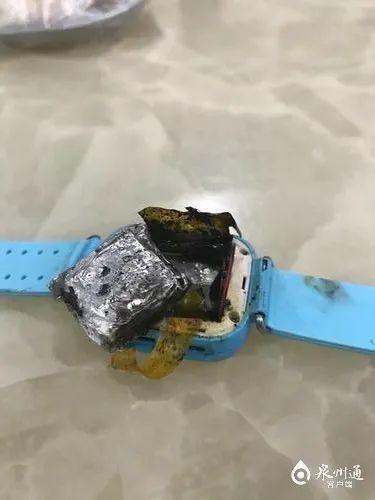 触目惊心!泉州:电话手表自燃,4岁女童被严重烧伤……