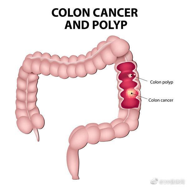 超9成大肠癌源于息肉癌变警惕这三种变化